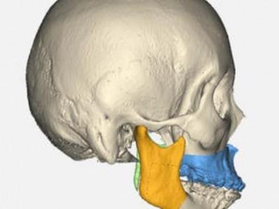 颌面整复外科